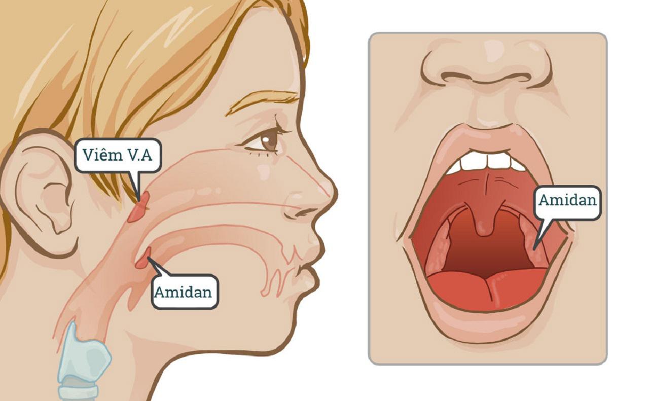 Viêm VA, viêm Amidan: Bệnh thường gặp ở trẻ và cách xử lý an toàn - Ảnh 1