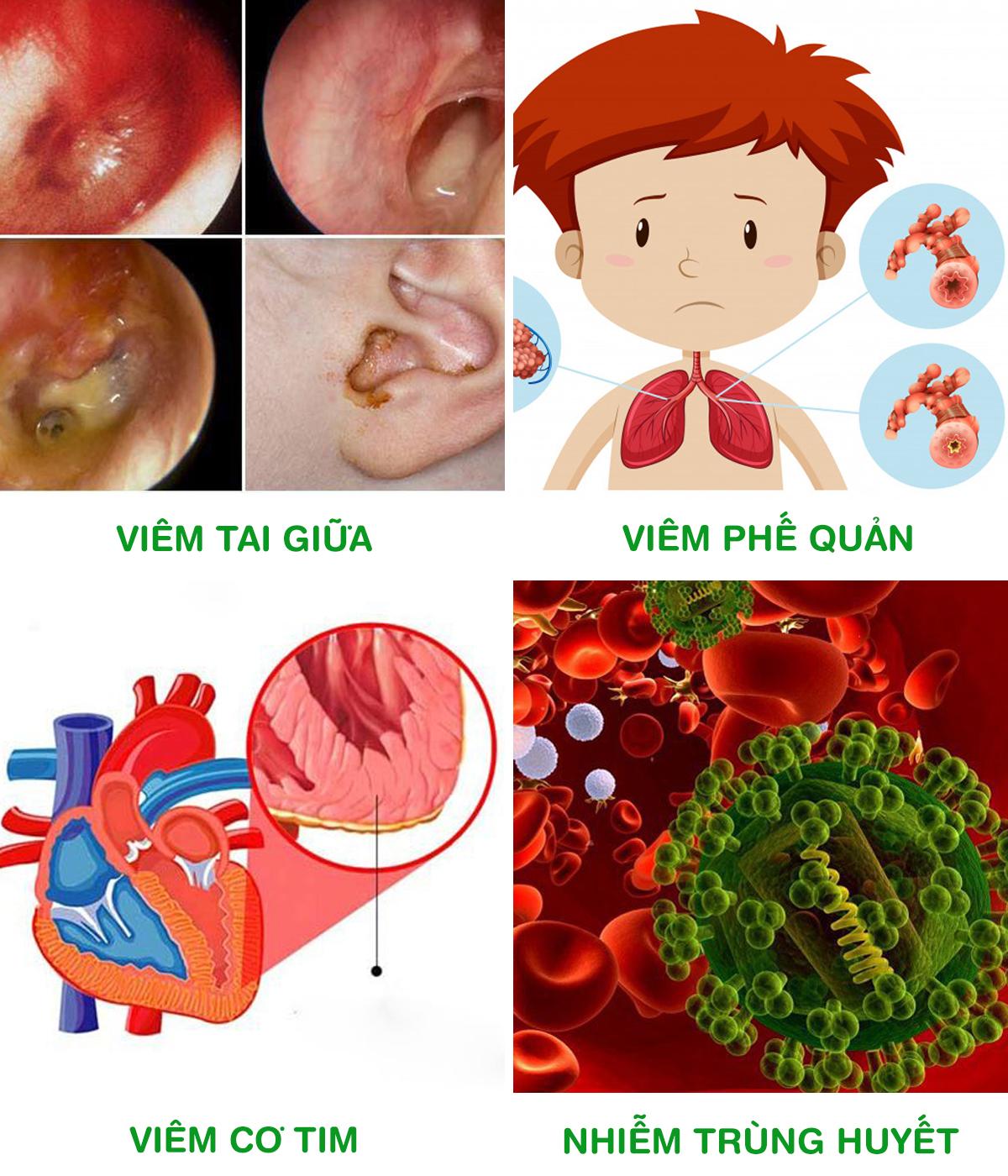 Biến chứng nguy hiểm do viêm VA, viêm Amidan gây ra