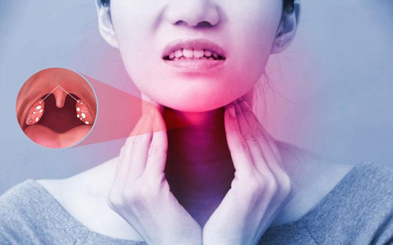 Viêm amidan hốc mủ gây ra đau họng, khó nuốt, khó nói