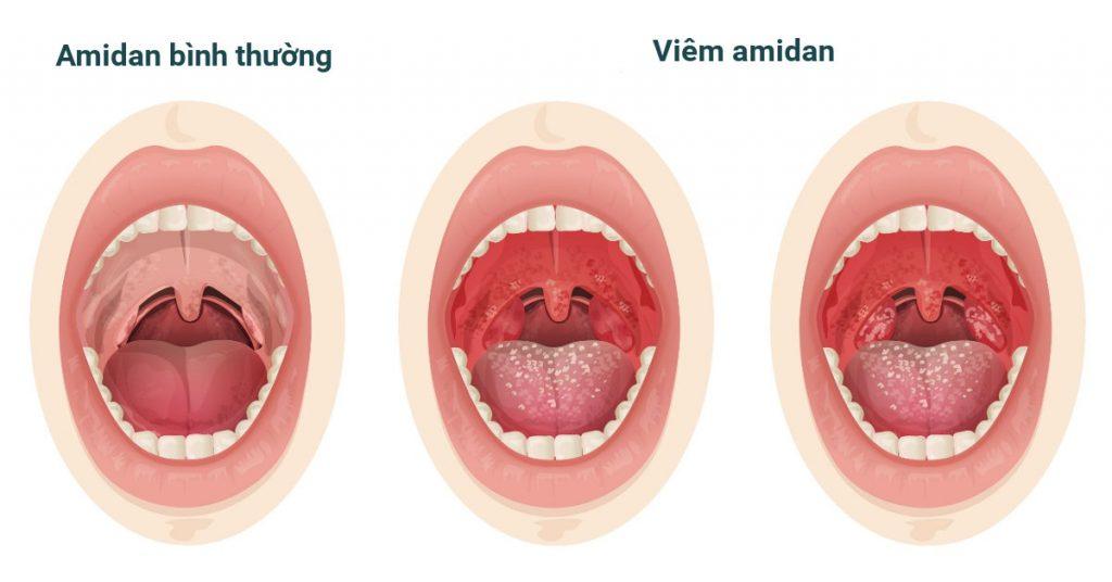 Bệnh viêm amidan ở trẻ em là gì
