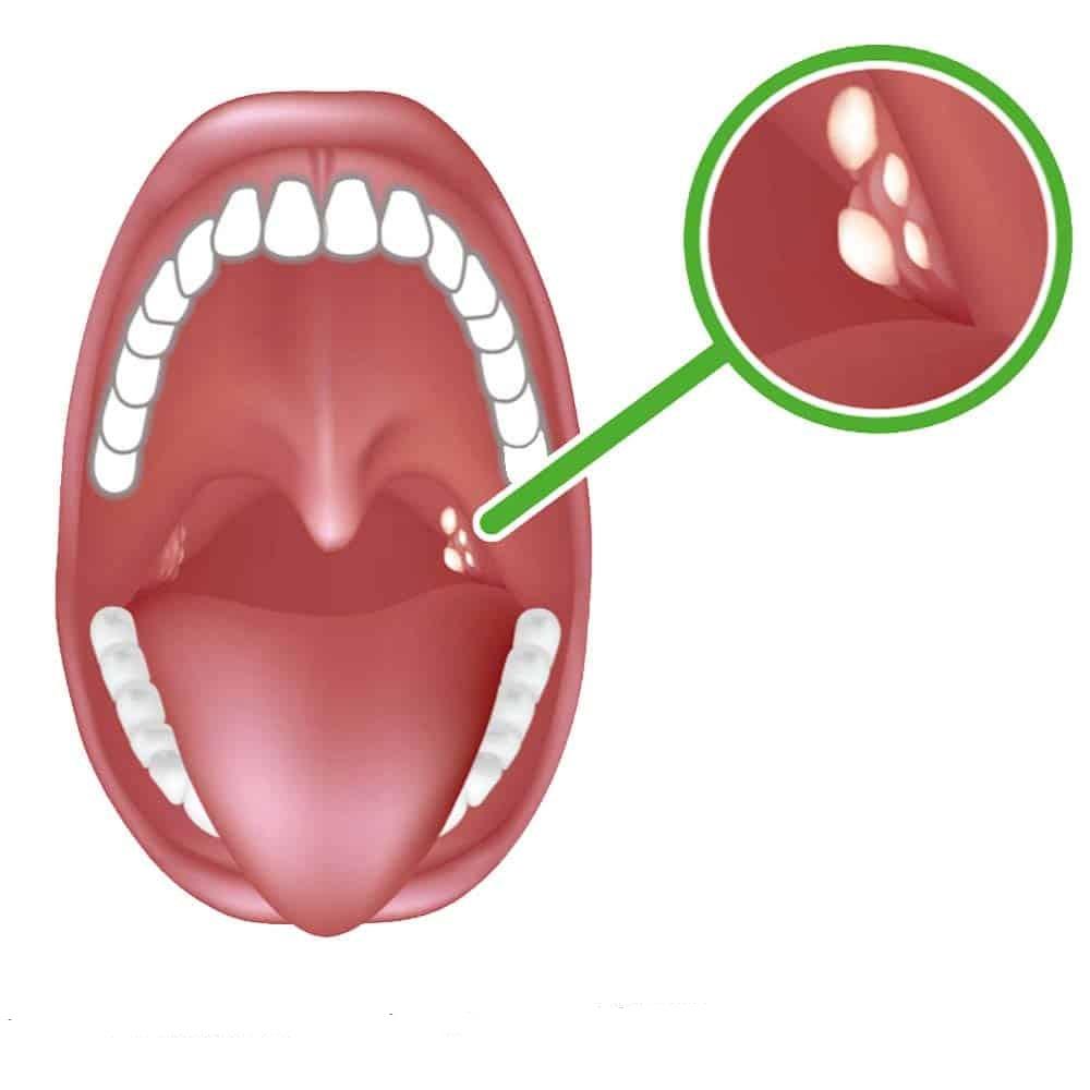 Hiểu rõ hơn về sỏi amidan và cách chữa trị tại nhà - Ảnh 1