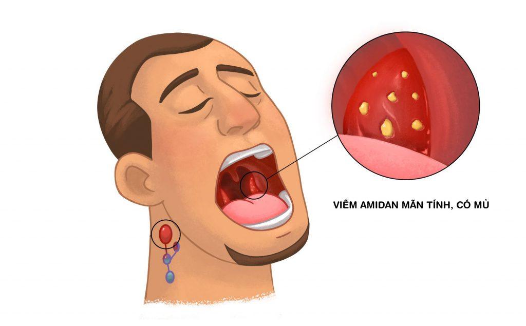 Người bị viêm amidan mãn tính có nên cắt không - Ảnh 2