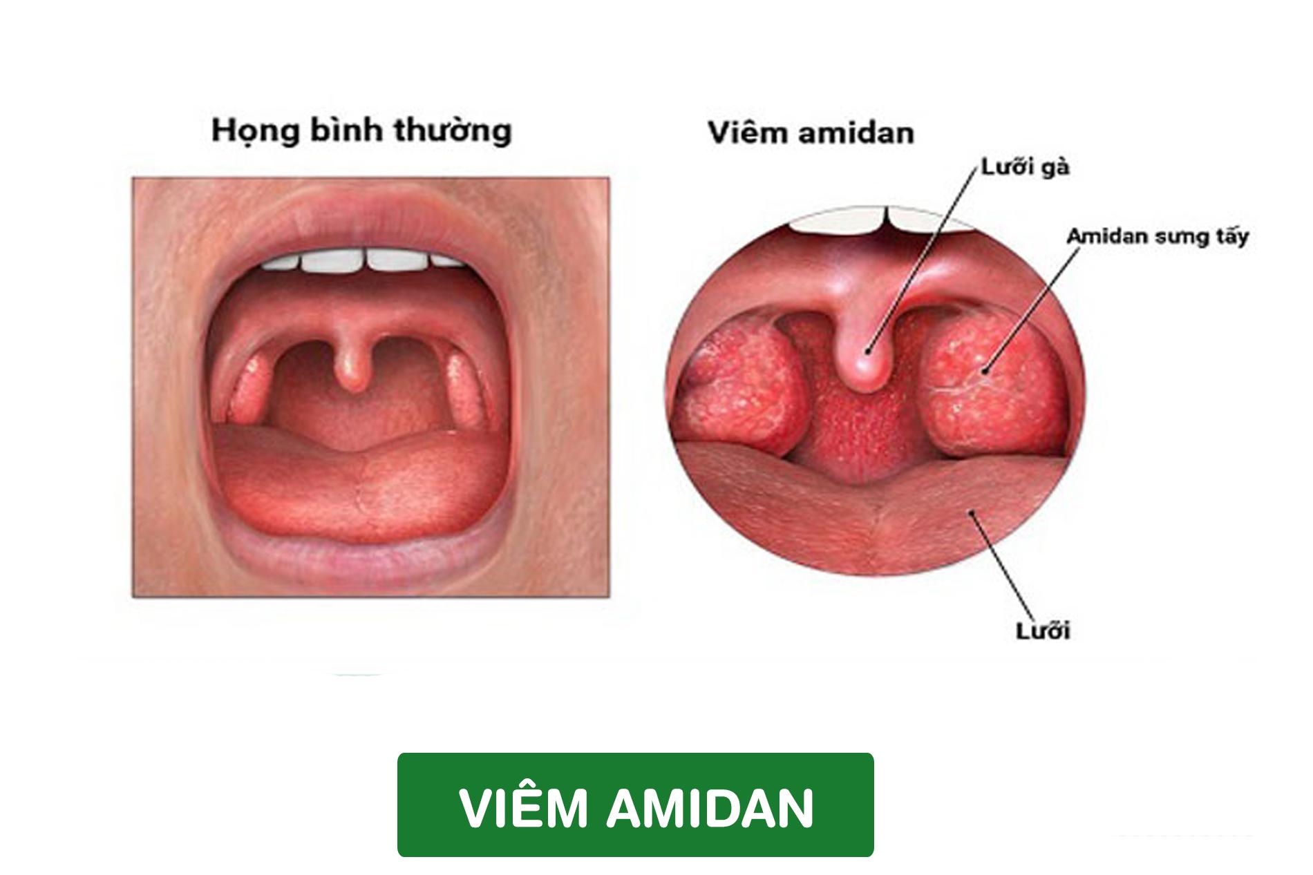 Điều trị bảo tồn amidan - ảnh 2