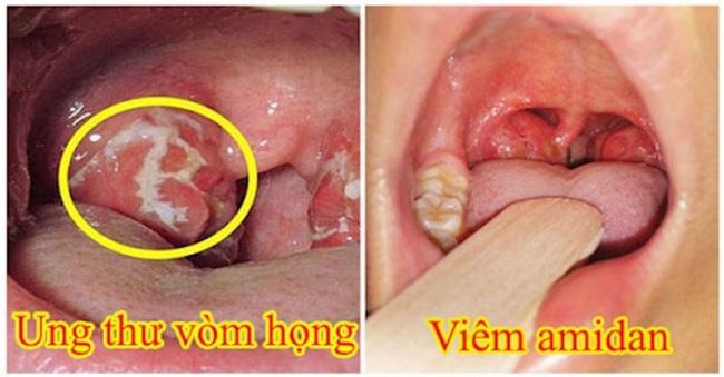 Sự khác nhau giữa ung thư vòm họng và viêm amidan