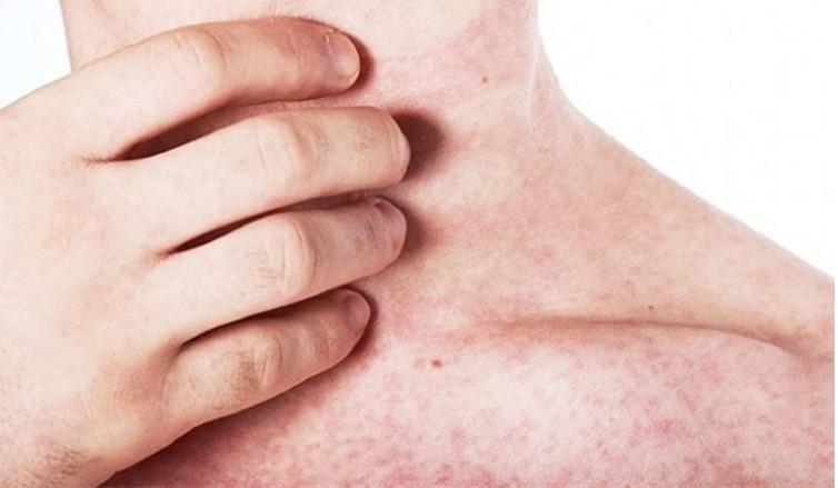 Nguyên nhân gây ra Viêm họng phát ban là gì?