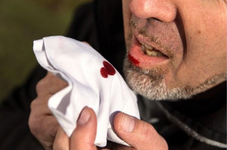 Những nguyên nhân gây nên tình trạng ho ra máu