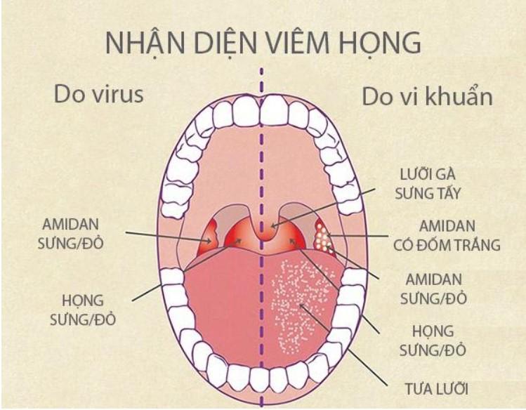 Cách nhận biết viêm họng do vi khuẩn gây ra