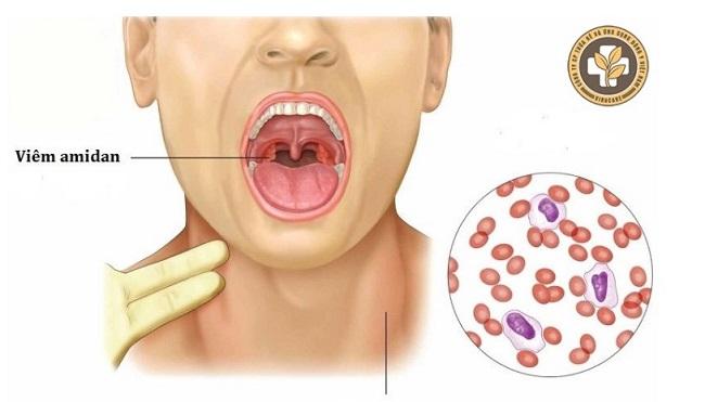 Có nhiều nguyên nhân dẫn đến viêm amidan