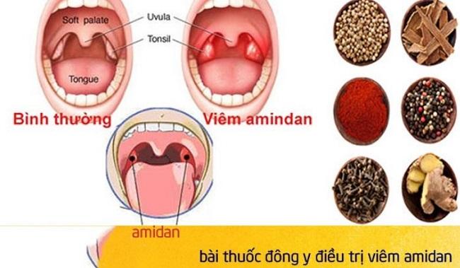 Sử dụng các sản phẩm điều trị viêm amidan có nguồn gốc tự nhiên