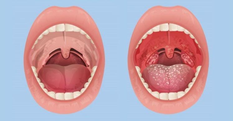 Nguyên nhân gây viêm họng cấp ở trẻ em