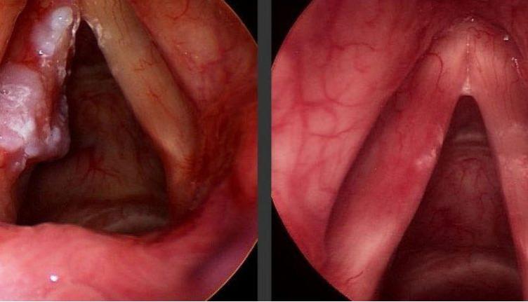 Viêm họng thanh quản cực kỳ nguy hiểm