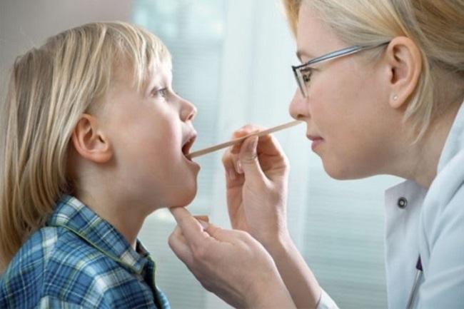 Một số tác nhân gây ra tình trạng viêm nhiễm amidan đáy lưỡi